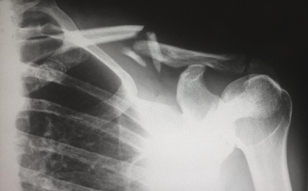 A broken shoulder bone shown on an x-ray.